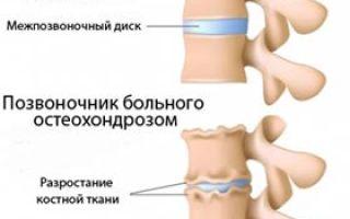 Как лечить шейный хондроз