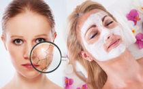 Сухие участки кожи на лице