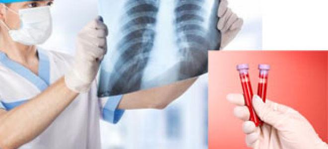 Все, что вам нужно знать о тестах крови, рентгеновских лучах и травматизме