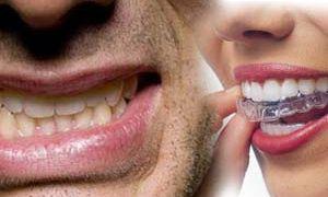 Cкрежетание зубами во сне