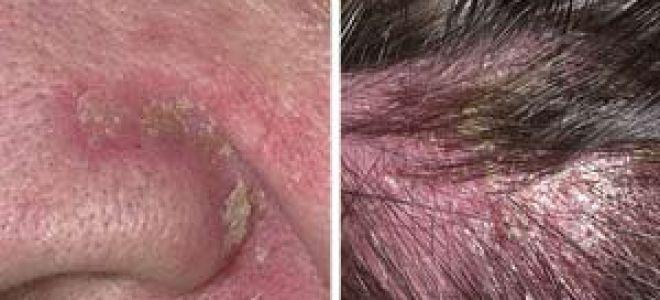 Как вылечить себорейный дерматит