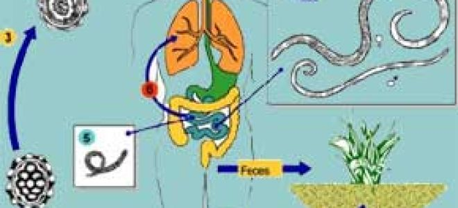 Аскаридоз  – лечение народными средствами