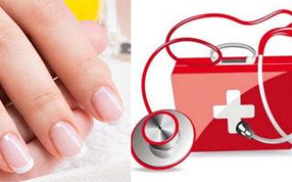 Что могут рассказать ногти о здоровье человека