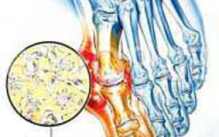Подагра: симптомы лечение