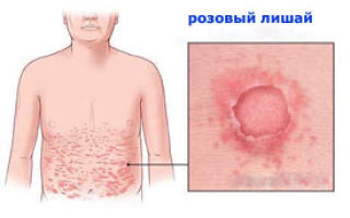 Розовый лишай – лечение