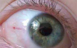 Сгустки крови в глазах