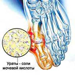 подагра симптомы лечение