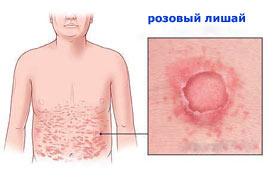 розовый лишай лечение