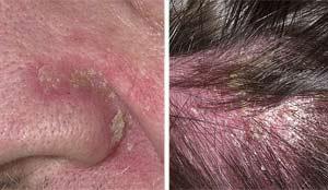 как вылечить себорейный дерматит на голове